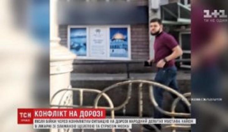 Deputatın çənəsini sındırdı və qaçdı-